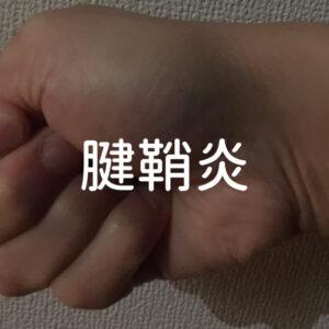 【腱鞘炎】その後の具合・ストレッチ・サポーターについて